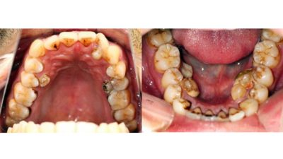 Illustration of Is It Possible That Teeth Can Grow Back After 4 Times Removed?