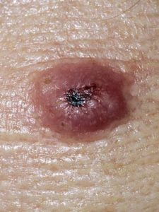 Illustration of Lumps Turn Into Holes And Festering?