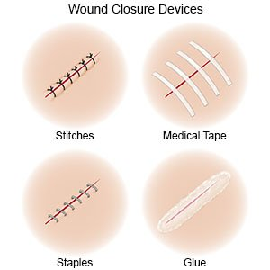 Illustration of Is It Necessary To Use Bandages After Opening The Stitches Because Clavus?