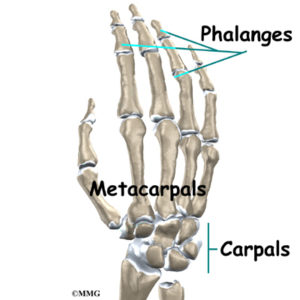 Illustration of The Condition Of The Wrists Decreases And The Arm Bones Shrink After The Accident?