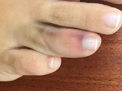 Illustration of Sprained Toes And Bumps, Can It Be Cured?
