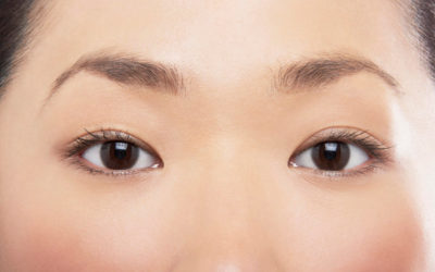 Illustration of Are Lazy Eyes The Same As Cylindrical Eyes?