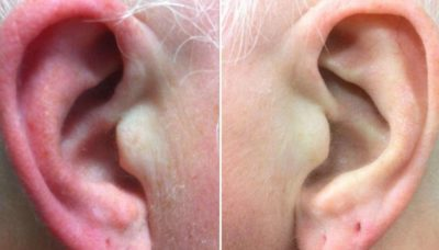 Illustration of How To Deal With Red And Swollen In The Ear Hole?