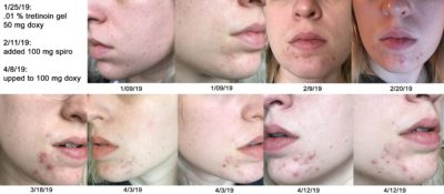 Illustration of The Effects Of Using Tretinoin For More Than 3 Months?