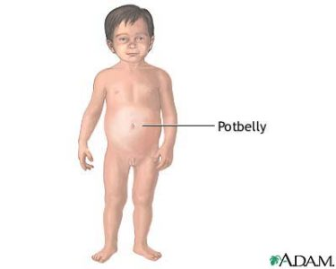 Illustration of BAB 2-year-old Child Has A White, Distended Abdomen But Thin Body?
