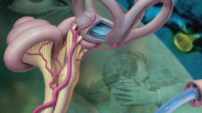 Illustration of Stomach Ache, Nausea, Fever And Dizziness Behind The Eyes?