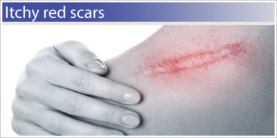 Illustration of Itching On The Area Inside The Surgical Scar?