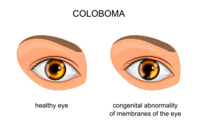Illustration of Are People With Coloboma Iris Including People With Low Vision?