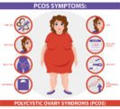 Is Irregular Menstrual Cycles Related To PCOS?