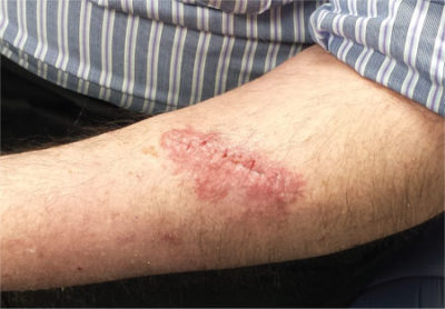 Illustration of Red Rash Around The Suture Wound After Appendicitis?