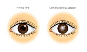 Illustration of Vision Appears Double And Yellowing After An Accident?
