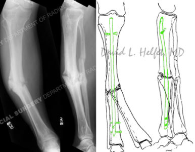 Illustration of Deformity In The Leg After A Fracture?