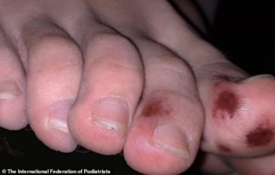 Illustration of The Cause Of A Stroke Patient's Feet Is Redness And Discharge And Swelling?