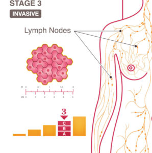 Illustration of Late Menstruation After Surgery For Breast Cancer Stage 1B And Taking The Drug Tamoxifen?