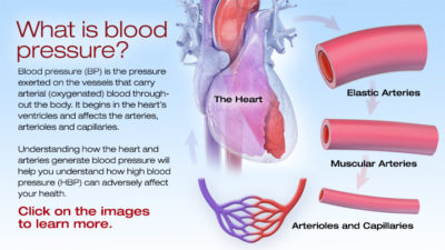 Illustration of What Happens To The Heart And Brain If The Elasticity Of Blood Vessels Decreases?