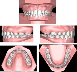 Illustration of Can Pairs Of Stirrup On Dentures?