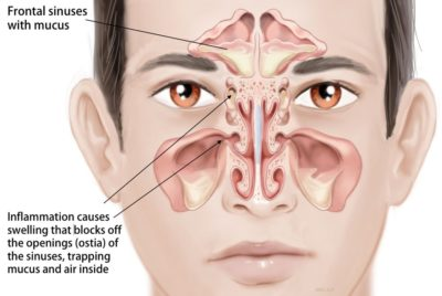 Illustration of Can Sinusitis Cause Lymph Nodes?