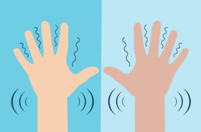 Illustration of Causes Frequent Shaking Of Both Hands?