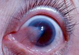 Handling Of The Eye Overgrown With Meat?