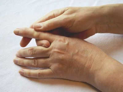 Illustration of How Long Is The Recovery After Finger Vein Surgery And Broken Hand Muscles?