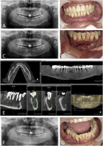 Illustration of Right Molars Bring Pain And Numbness?