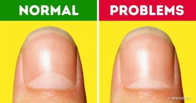 Illustration of There Are No Lunulas On All Fingers And Toes?