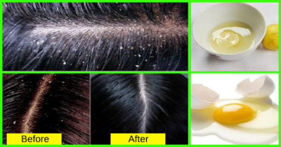 Illustration of How To Get Rid Of Dandruff Completely?