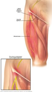 Illustration of Upper Right Thigh Aches After Falling From The Motor?