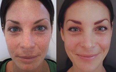 Illustration of Do Chemical Peels For Acne Problems Have To Be Done Routinely Every Month?