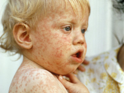 Illustration of How To Treat Skin Infections In Children Aged 20 Months?