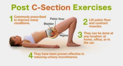 Illustration of Can Kegel Exercises After A Caesarean Section?