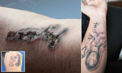Illustration of Skin Burns Due To Tattoo Removal?