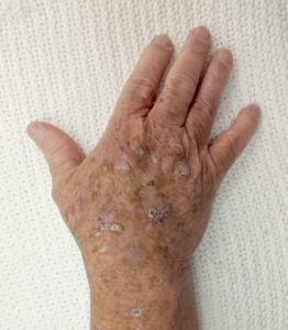 Illustration of Acne On The Skin Of The Hands Accompanied By Keratosis On The Skin Of The Thighs And Arms?