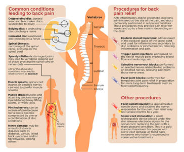Illustration of Treatment Of Back Pain And Cramps In The Legs And Cramps?