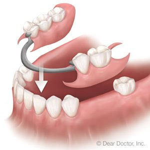 Illustration of Dentures For Toothless Teeth?