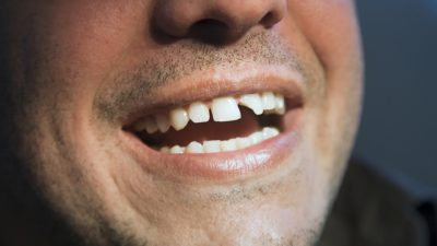 Illustration of How To Deal With Partially Broken Front Teeth?