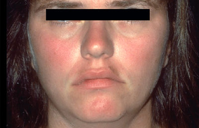Illustration of How Long Can The Redness On The Face Due To Ice Pack Compresses Can Disappear?
