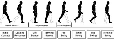 Illustration of The Cause Of The Elderly Can Not Walk Because Both Legs Are Difficult To Lift?