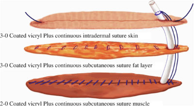 Illustration of Is The Surgical Suture Safely Applied To Povidone Iodine Continuously?