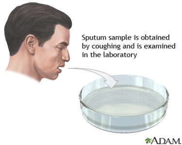 Illustration of Does The Result Of The Sputum Test Detect That Mycobacterium Tuberculosis Is Positive For TB?
