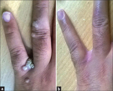 Illustration of Is There An Impact If Former TB Patients Do Wart Removal By Electrocauter Method?