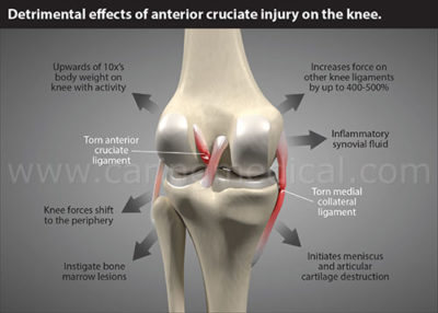 Illustration of Does The Anterior Cruciate Ligament (ACL) Treatment Need To Be Surgically Removed?