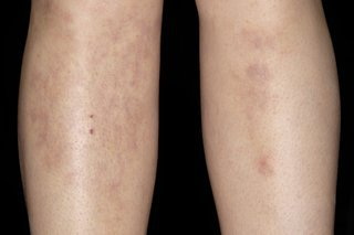 Illustration of Lumps Appear On The Thighs, Shins And Sides Of The Feet And Pain When Pressed?
