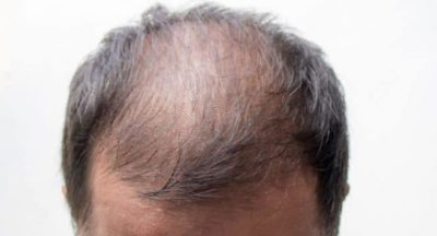 Illustration of Side Effects Of Using The Drug Minoxidil To Overcome Baldness?