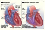 Can Congenital Heart Disease Be Cured?