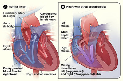 Illustration of Can Congenital Heart Disease Be Cured?