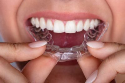 Illustration of How Long Does It Take To Use A Dental Retainer?