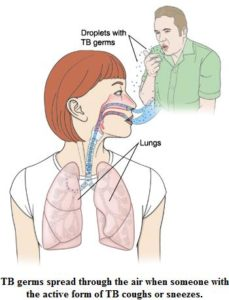 Illustration of How To Deal With Tuberculosis And Feel Crowded When Going Up The Mountain?