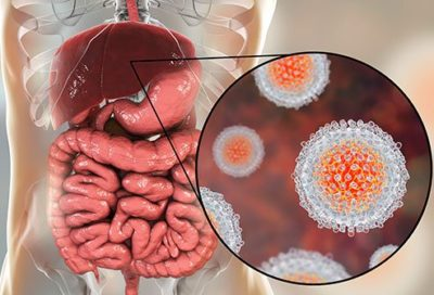Illustration of The Cause Of Hepatitis A Sufferers Experiencing Severe Dehydration?
