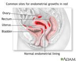 Is Menstruation Still Normal For Women With Endometriosis Who Take Synthetic Progestin Drugs?
